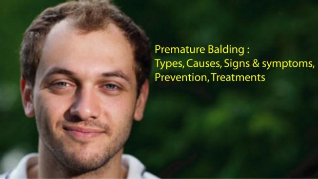 Premature Balding