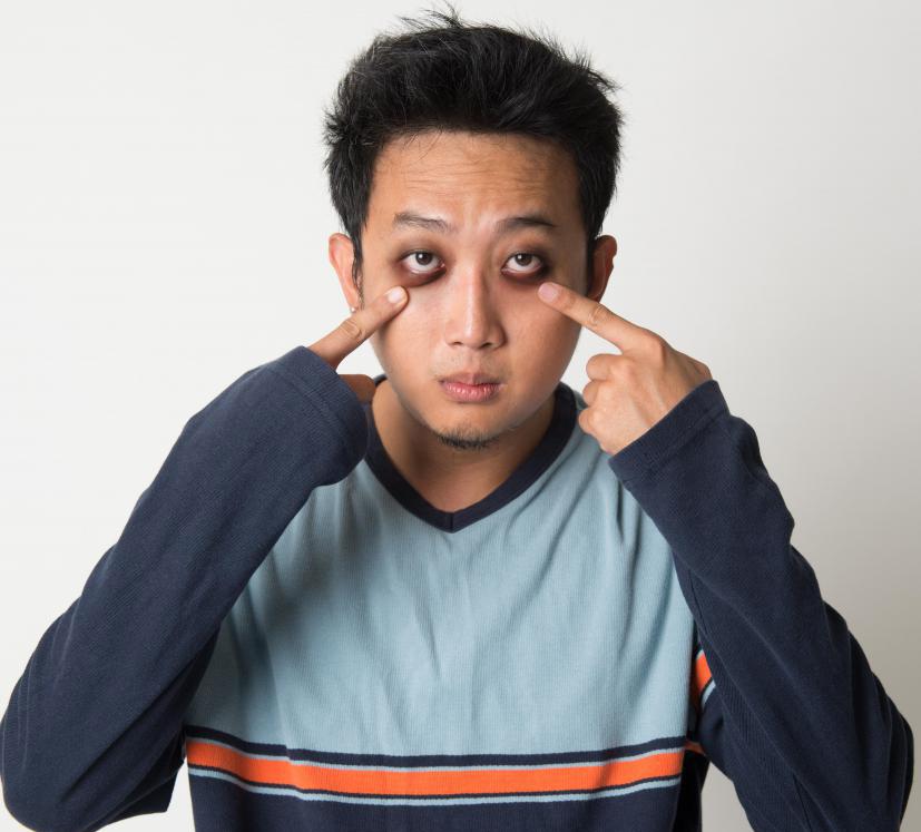 Dark Circles Under Eyes Men : Causes And Remedies