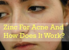 zinc for acne