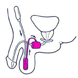 sfintere urinario_procedura_dott_gabriele_antonini