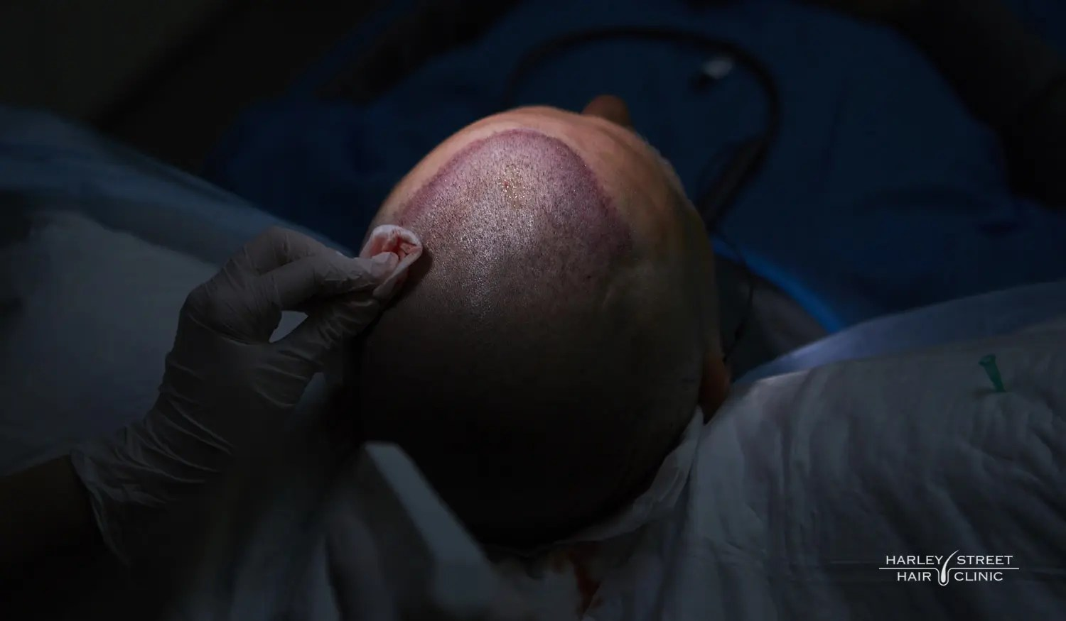 Hair Transplants & COVID-19 – How To Manage Hair Loss In Lockdown