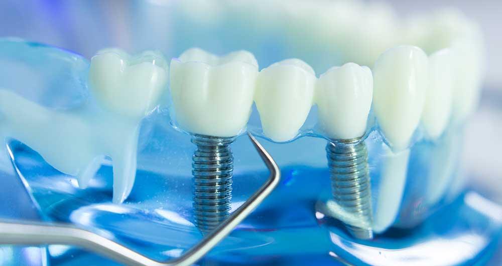 evaluation dental implants