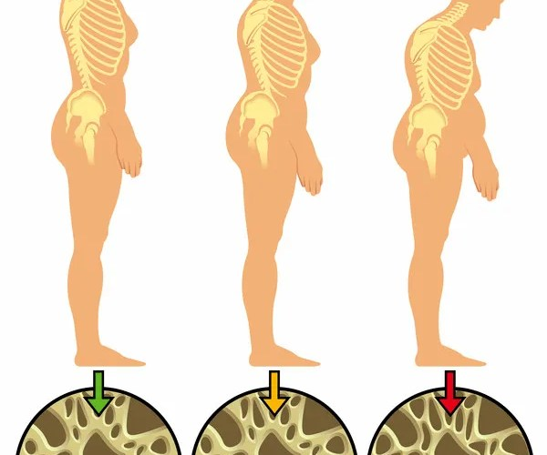 Osteoporosis: Causes, Symptoms And Treatment