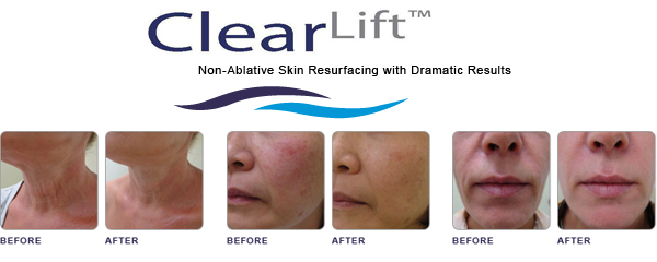 before-after-clear-lift