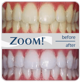 zoom-teeth-whitening-ny