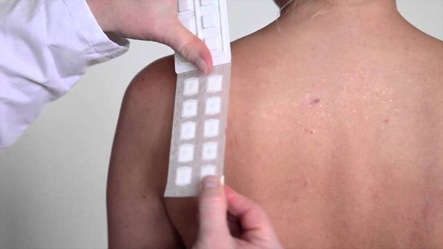 Skin patch test,allergy,Skin and Allergy