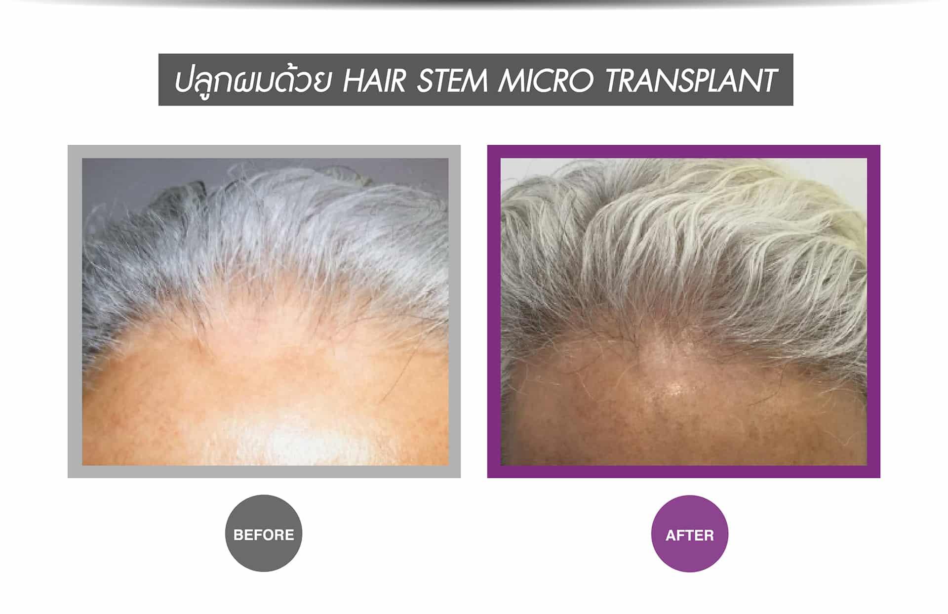 Hair Stem Micro Transplant-2