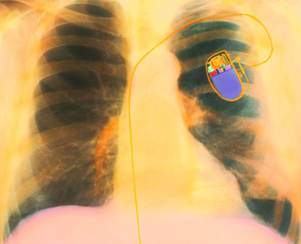 """Medical Experts Warn: Do Not Wear Smartphones Close to Your Pacemakers """