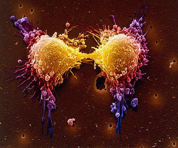 """""""cancer cell mutation"""""""