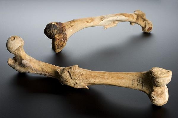 Human femur