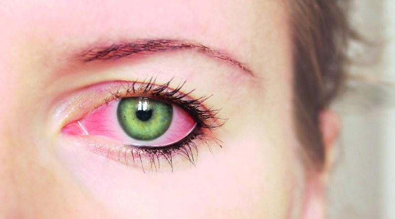rote Augen - wirksam bekämpfen