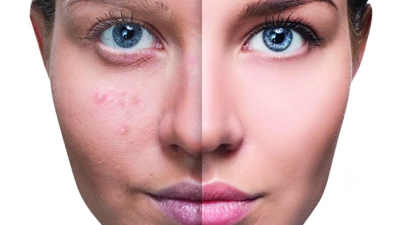 Akne - kein reines Jugendproblem - Erwachsene Frau mit Akne