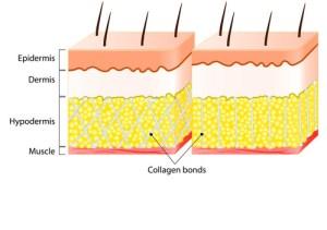 Bindegewebe-im-Vergleich-Männer-und-Frauen
