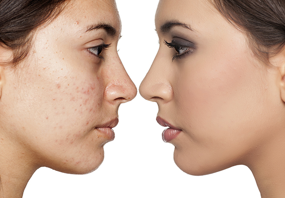 Gegenüberstellung: Frau mit unreiner Haut und mit reiner Haut. Hautunreinheiten