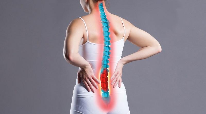 Frau von hinten mit dargestellter Wirbelsäule. chronische Rückenschmerzen