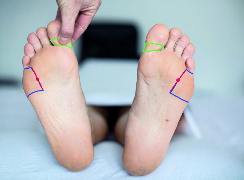 Füße einer Frau. Fußreflexzonenmassage Schulter- und Nackenzone. Frau drückt auf Fußreflexzonenpunkte. Fußreflexzonenmassage Schulter- und Nackenzone