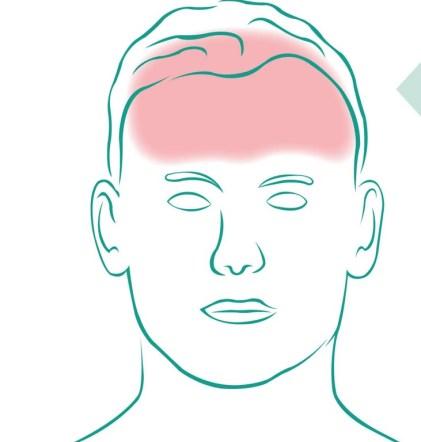 Illustration eines Mannes mit Spannungskopfschmerzen. Bereiche eingefärbt. Mutterkraut