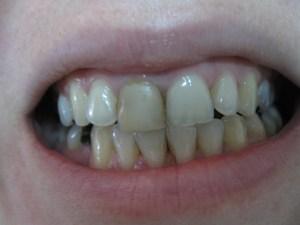Pacijent 12 (slika 1)