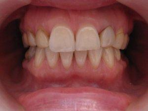 Pacijent 9 (slika 2)