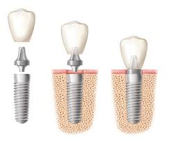 implant-structure-adc