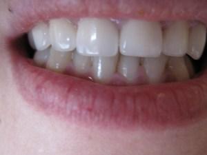 Patient 16 (image 3)