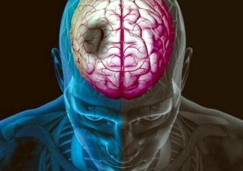 Χίλιοι Κρητικοί κάθε χρόνο στα νοσοκομεία, με εγκεφαλικό!