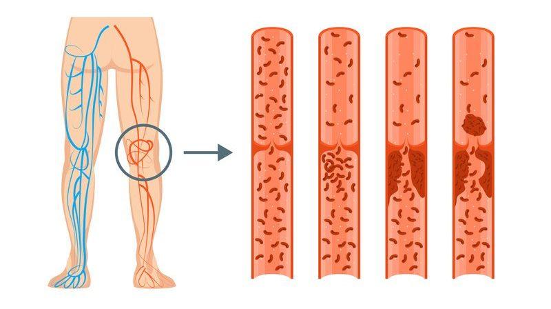 thrombose ursache risiken abhilfe
