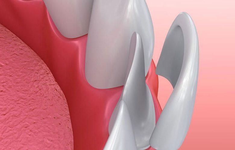 Beautiful Teeth with Veneers