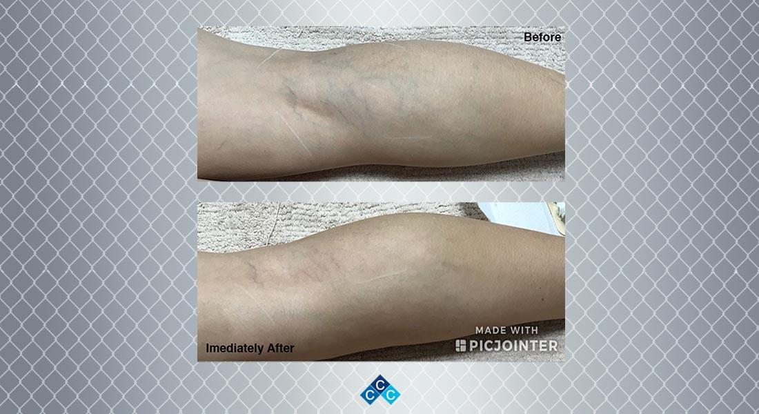How Do You Get Rid of Capillary Veins?