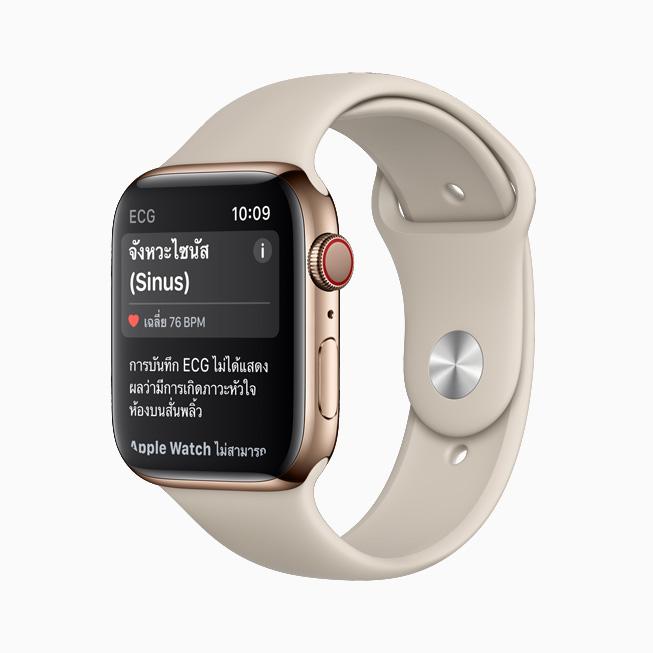 แอพ ECG บน Apple Watch Series 6 แสดงการจัดประเภทเป็นจังหวะไซนัส