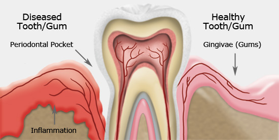 Gum disease treatment in coburg