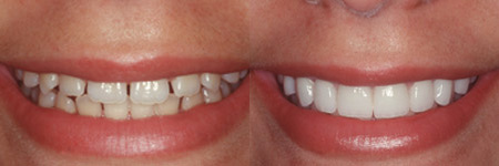White Teeth | Cosmetic Dentistry | Southern Dental | AprilNoelle.com