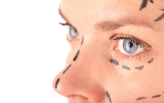 Rhinoplasty Surgery in Kansas City