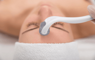 VI Chemical Peels in Kansas City