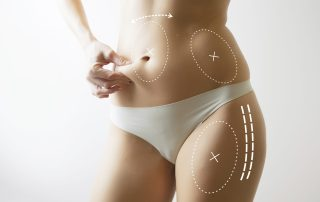 How To Prepare For Liposuction Surgery