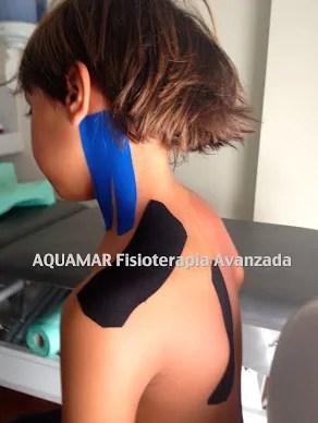 lesiones deportivas en pediatría