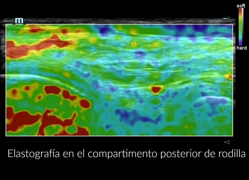 clínica de fisioterapia La Laguna