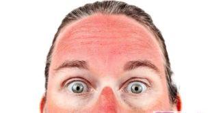 علاج حروق الشمس