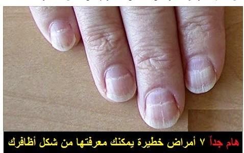 الحالة الصحية من شكل الاظافر تشير الي صحة جسمك او عدمه شاهد | شبكة عرب مصر