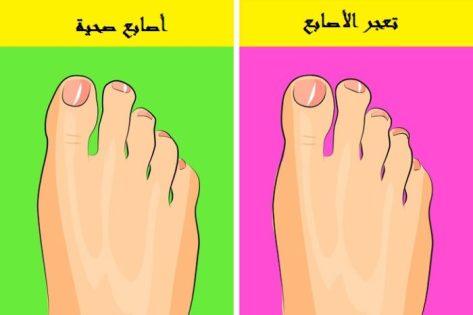 10 أعراض إذا ظهرت على قدميك فقد تكون إنذار لإصابتك بأمراض خطيرة تعر ف عليها
