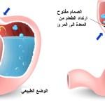 الارتجاع المعدي المريئي – Esophageal Reflux