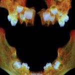 raunds-maxilla-and-mandible