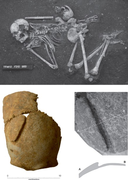 Top - burial 5, a man with a traumatic head wound. Below - the skull of another man which had been placed at the small of his back