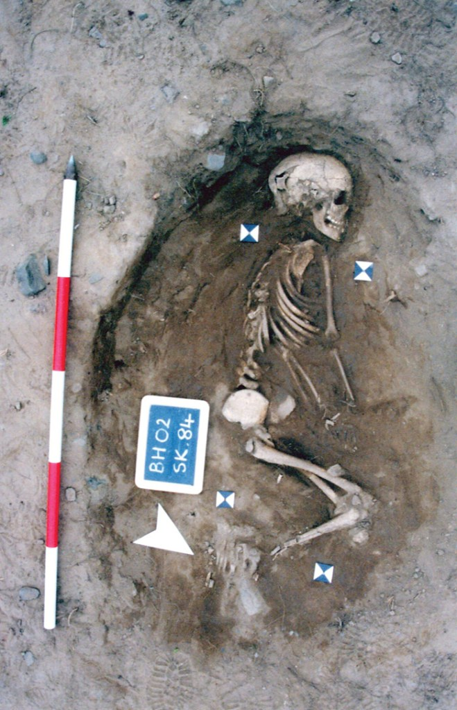 Skeleton of a child age 8-9 years old at time of death, with scale and label
