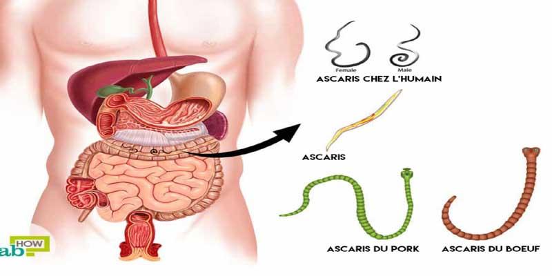 Si vous avez ces symptômes, vos intestins peuvent être saturés de parasites