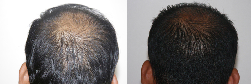 mens-hair-restoration-13