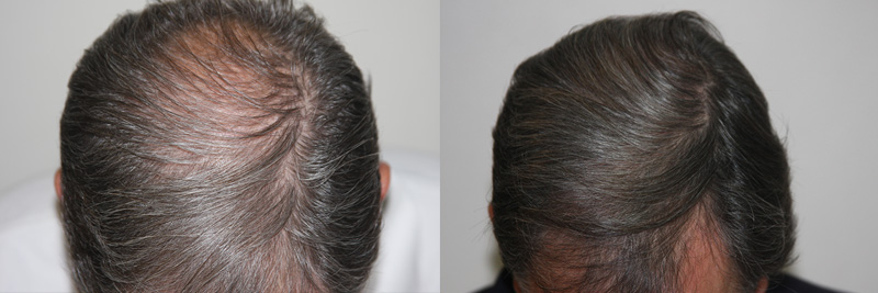 mens-hair-restoration-16