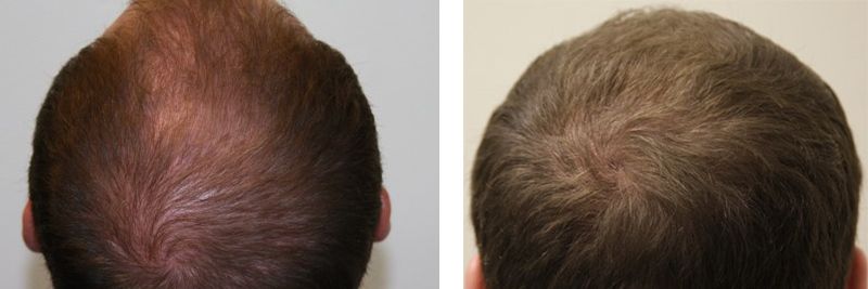 mens-hair-restoration-19
