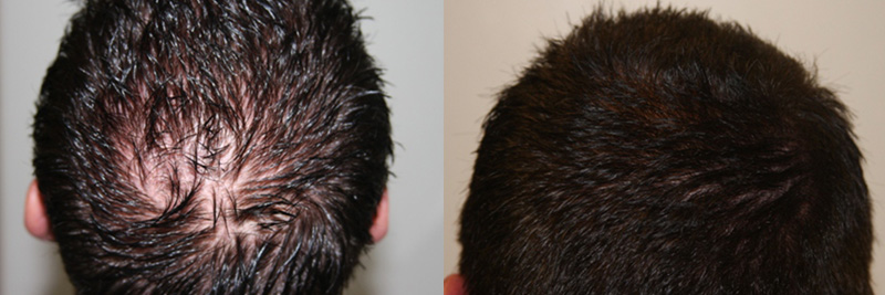 mens-hair-restoration-20