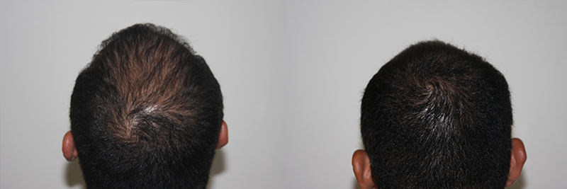 mens-hair-restoration-25